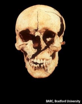 Il cranio di Towton 25, con le evidenti ferite che ne causarono la morte